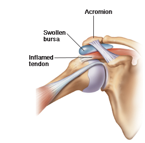 shoulder-impingement-picture